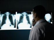 Названы регионы с наибольшей распространенностью онкозаболеваний