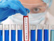 За последние сутки в Поморье выявлено 215 новых случаев заболевания COVID-19