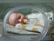 В России снизилась смертность среди недоношенных детей